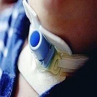 Рекомендуемые принципы безопасной трахеостомии во время пандемии COVID-19
